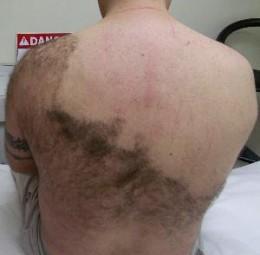 метод, который дает возможность, избавится от ненужных волос - путем исключения репродуктивной функции волосяных...