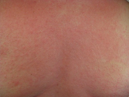 A rash formed due to Anaphylactic Shock