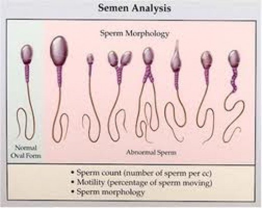 Sperm motility increasing drugs