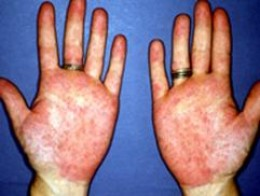 The palms become reddened (palmar erythema)  non-specific sign of JRA