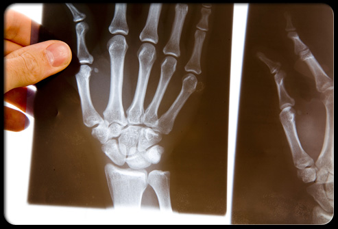 Rheumatoid arthritis (often called RA) is a chronic (long-standing) disease that damages the joints of the body.