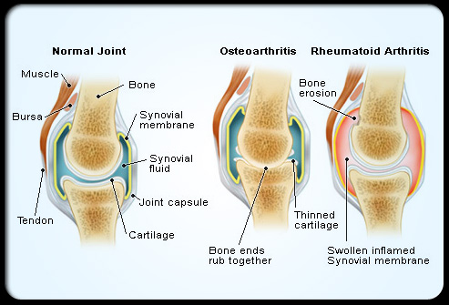 An example showing the differences between a normal, healthy joint, a joint affected by osteoarthritis, and one affected by rheumatoid arthritis