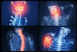 The symptoms of rheumatoid arthritis come and go, depending on the degree of tissue inflammation