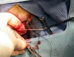 Heartworm extraction via jugular vein