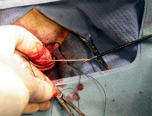Heartworm extraction via jugular vein