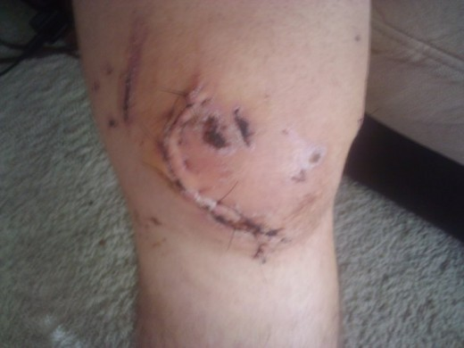 My knee looks like a baseball's seams