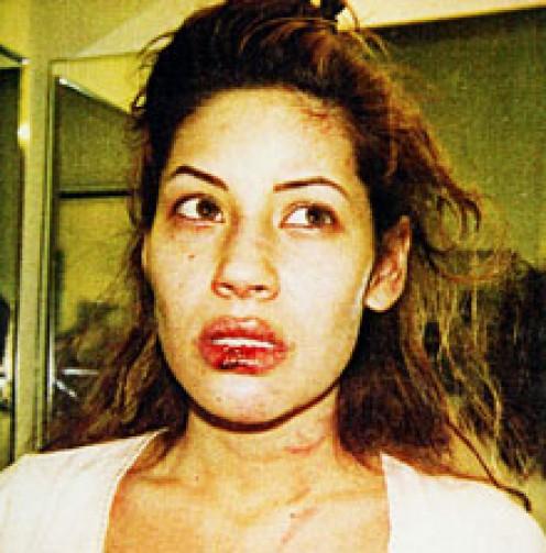 Beaten Brittany Ashland