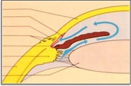 Glaucoma Scheme