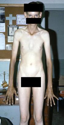 Marphan syndrome