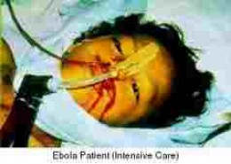 Victim of the Ebola virus in critical care