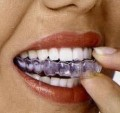 How much do braces cost? – How much are braces for you and your children