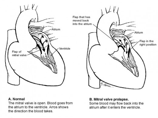 View of mitral valve prolapse