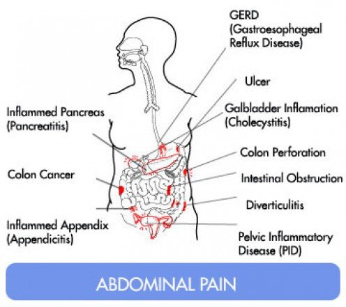 Peppermint Oil Caused Stomach Acid