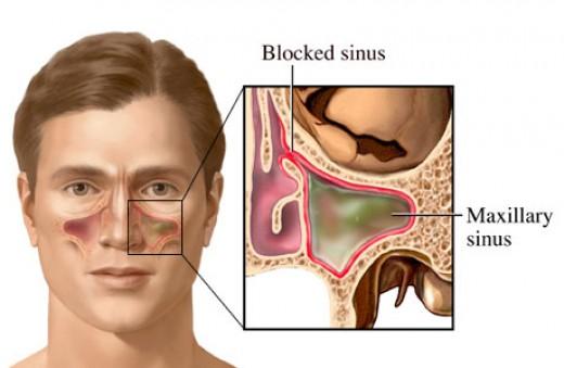 cause of sinus
