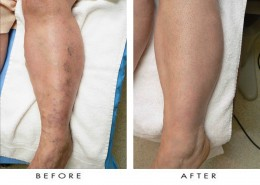 Spider vein treatment. The spider veins of this patient were treated with sclerotherapy injections at Nu Vela Esthetica, Los Angeles.