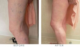 Spider vein treatment. The spider veins of this patient were treated Dr. R. Dishakjian, Los Angeles.