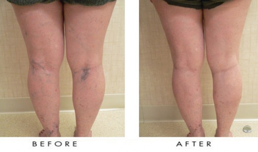 Before and after sclerotherapy. The spider veins of the patient had almost disappeared after 3 months following the treatment.