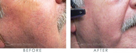 The facial veins of this patient were treated with laser therapy by Dr. R. Dishakjian of Nu Vela Esthetica, Los Angeles.