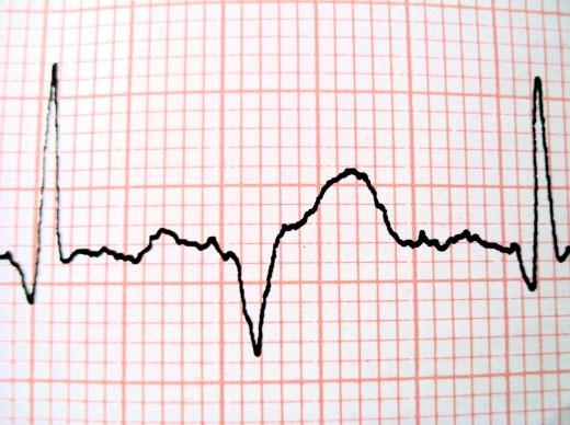 Medicine For Gas  feels like gerd in throat   Heartburn