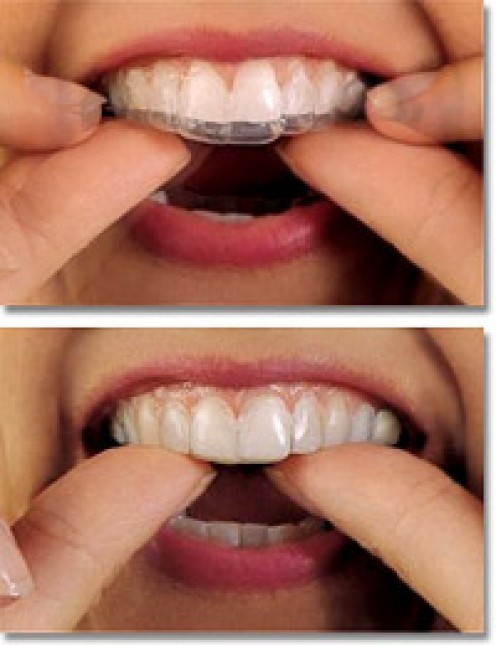 Using teeth whitening gel at home
