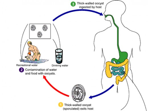 Cryptosporidium is an intestinal parasite that causes severe diarrhea