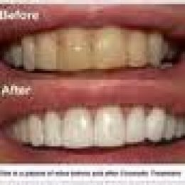 The whitening of teeth after prolonged practice of oil pulling