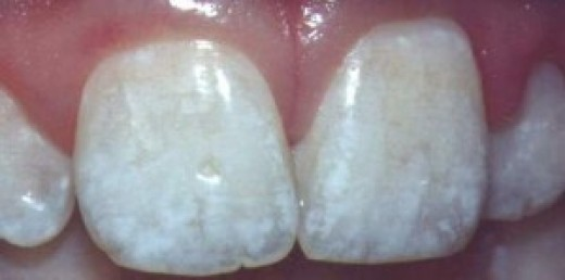 Damaged teeth, due to fluoride