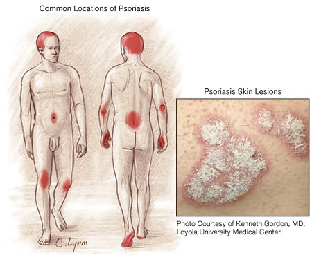 Common location of Psoriasis