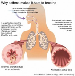 Asthma: Just Part Of My Life With Churg Strauss Syndrome