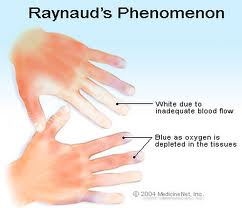 Example of Raynaud's Syndrome