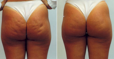 The Revitol Cellulite Solution really works!