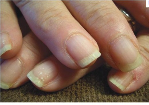 Brittle Nails Causes And Treatments
