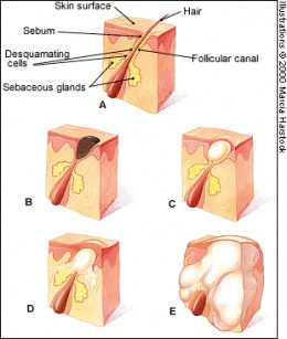 Figure showing stages of acne. (A) Normal follicle; (B) Open comedo (blackhead); (C) Closed comedo (whitehead); (D) Papule; (E) Pustule.