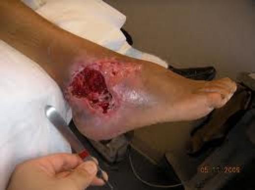 wound vacuum #10