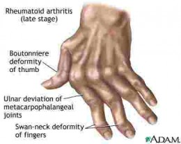 Diagram of a Crippled Hand - Crippled by Rheumatoid Arthritis