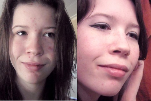 My before and after picture. In the first photo I am not wearing makeup. Having clearer skin has really helped me start feeling better about myself... I don't want to hide in my house anymore. It feels great!
