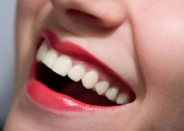 How to get the white smile of your dreams