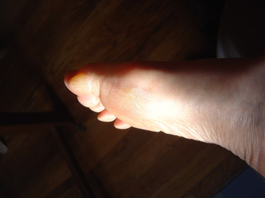 Check out your feet for health problems. This foot shows hard skin on the toe and base of the foot that might require a visit to the podiatrist.