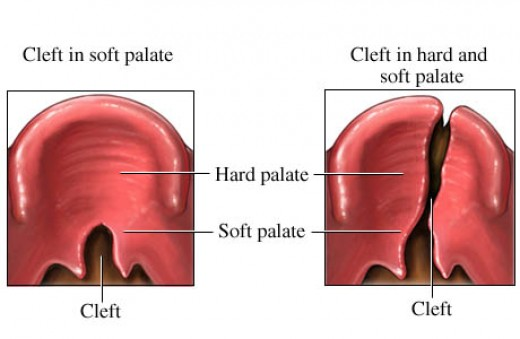 bilateral cleft lip. The Chinese word for cleft lip