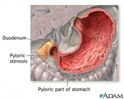 My Infant Projectile Vomits is it Pyloric Stenosis?