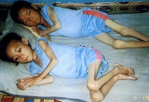north korean people starving. Starving North Korean children