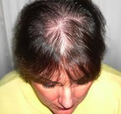 Thinning and Hair Loss:  Solutions for Women