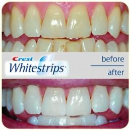 اطلبها الآن : لاصقات تبييض الأسنان