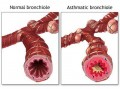 Natural Treatments For Asthma