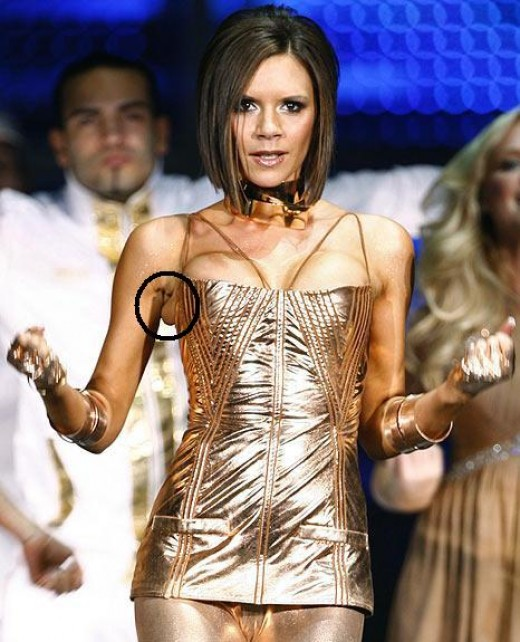 The big busted Victoria Beckham ain't so posh anymore with all that excess underarm skin toppling over her corset.