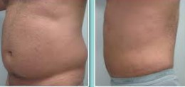 male abdominal liposuction