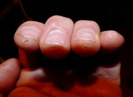 My fingertips after 1 month