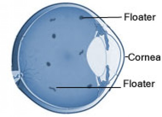 In this diagram floaters or specks can be seen behind the lens and cornea of the eyeball suspended within the vitreous humour