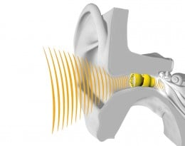 The Lyric Hearing Aid
