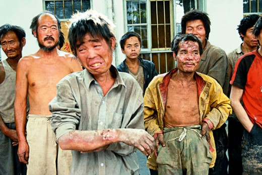 No Workers Compensation For Chinese Workers